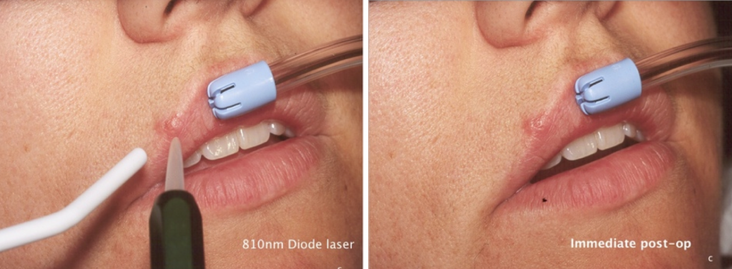 Laser Cold Sore Treatment