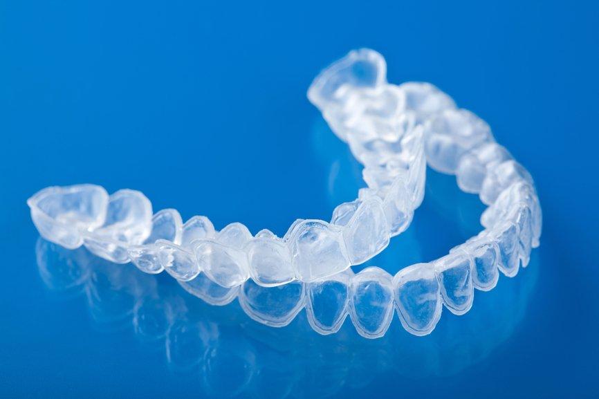 Teeth Whitening in San Diego