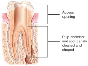 Root Canal Access Opening