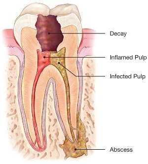 Root Canal Abcessed Tooth